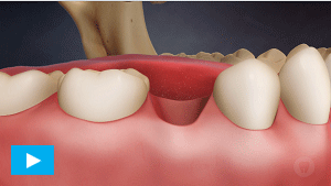 Oral Health Etobicoke - Dental Crowns Implants